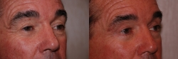 Eyelid Lift Patient - 4