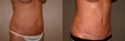 22318-abdominoplasty-O