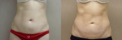 Liposuction-11867-SAL-Abdomen-F.jpg