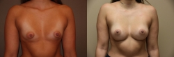 Breast Correction Patient - 20