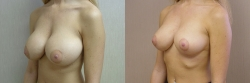 Breast Correction Patient - 6