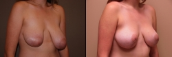 Breast Correction Patient - 19