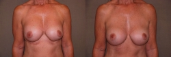 17610-breast-correction-symmastia-F
