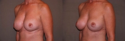 Breast Correction Patient - 16