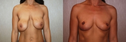 Breast Correction Patient - 17