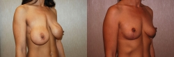 19915-removal-of-implants-mastopexy-O
