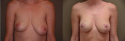 Breast Correction Patient - 18