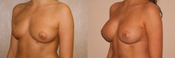 Breast Correction Patient - 13