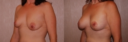 Breast Correction Patient - 14