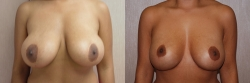Breast Correction Patient - 3