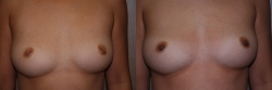 Breast Correction Patient - 4