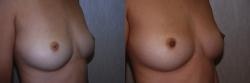 Inverted-nipples-17167-OR.jpg