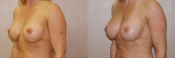 Breast Correction Patient - 5