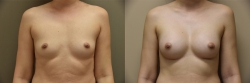 Breast Augmentation Patient - 79
