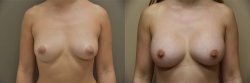 Breast Augmentation Patient - 74
