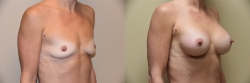 Breast Augmentation Patient - 81