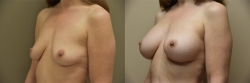 Breast Augmentation Patient - 78