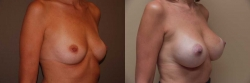 Breast Augmentation Patient - 73