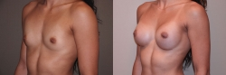 Breast Augmentation Patient - 70