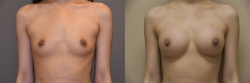 Breast Augmentation Patient - 77