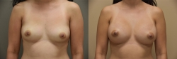 Breast Augmentation Patient - 80