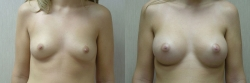 Breast Augmentation Patient - 63