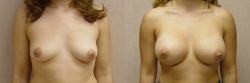 Breast Augmentation Patient - 62