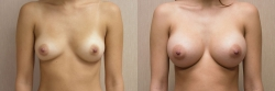 Breast Augmentation Patient - 61