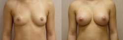 Breast Augmentation Patient - 60