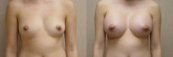 Breast Augmentation Patient - 59