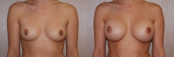 Breast Augmentation Patient - 56