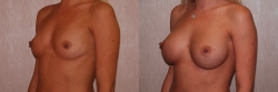 Breast Augmentation Patient - 52