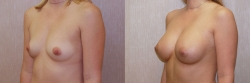 Breast Augmentation Patient - 45