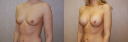 Breast Augmentation Patient - 42