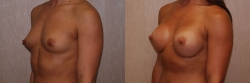Breast Augmentation Patient - 41