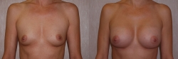 Breast Augmentation Patient - 40