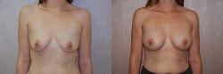 Breast Augmentation Patient - 37