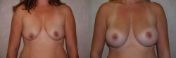 Breast Augmentation Patient - 31