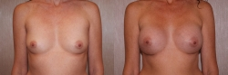 Breast Augmentation Patient - 24