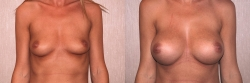 Breast Augmentation Patient - 23