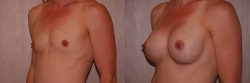 Breast Augmentation Patient - 19
