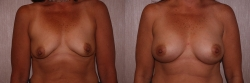Breast Augmentation Patient - 17