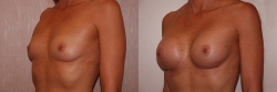 Breast Augmentation Patient - 10