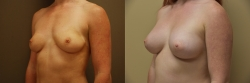 Breast Augmentation Patient - 75