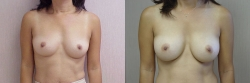 Breast Augmentation Patient - 66