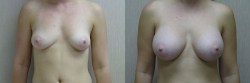 Breast Augmentation Patient - 65