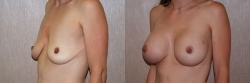 Breast Augmentation Patient - 64
