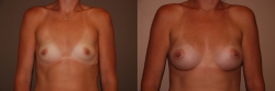 Breast Augmentation Patient - 76