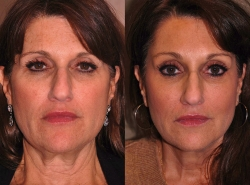 Facelift Patient - 1