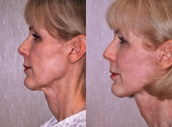 Facelift Patient - 5